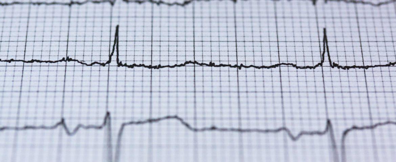 Down Sendromu Kalp Bulguları Nasıldır?